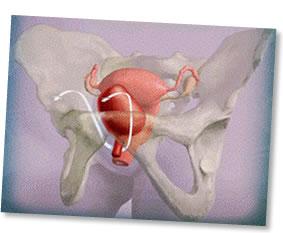 Urinary Incontinence Hertfordshire Gynaecology